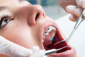 tipos de aparelhos ortodonticos