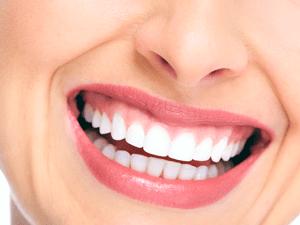 dentista-curitiba-clareamento-dental