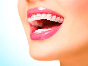 dentista-curitiba-ortodontia
