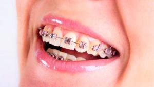 ortodontia-curitiba