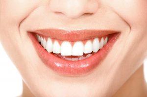 lentes de contato dental curitiba