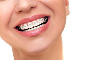 aparelhos-ortodonticos-curitiba