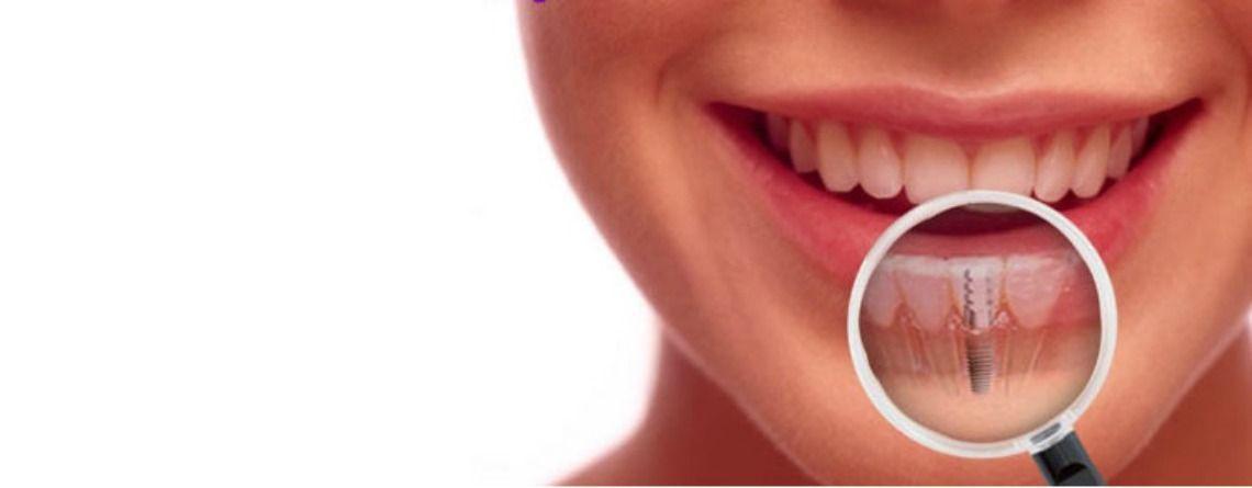 implante dentario curitiba