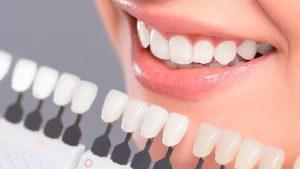 lentes_contato_dental